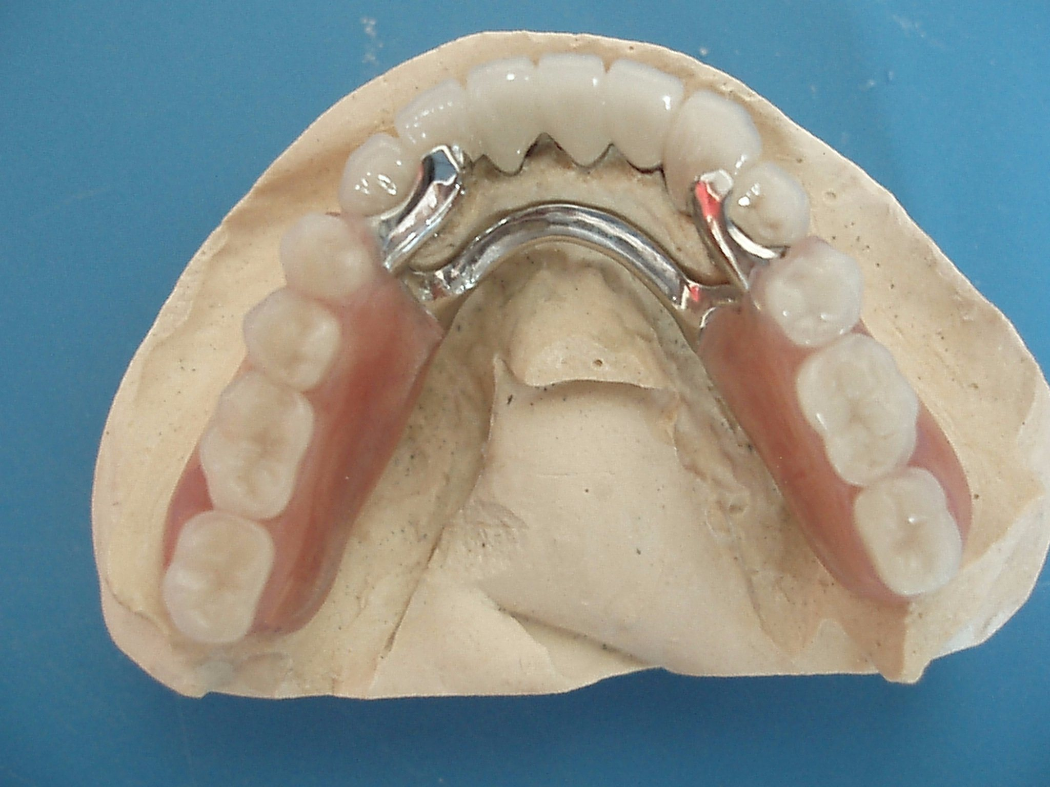 Co-Cr Alloy Dental Framework with Precious Attachments Made in China Dental Lab