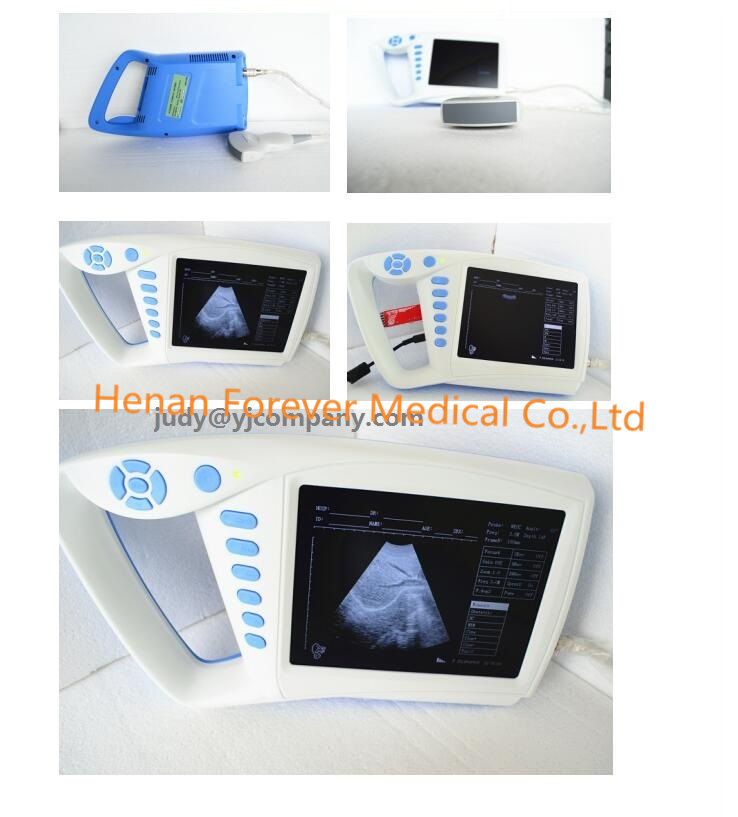 Digital Portable Animal Pregnance Diagnosis Ultrasound Scanner pictures & photos