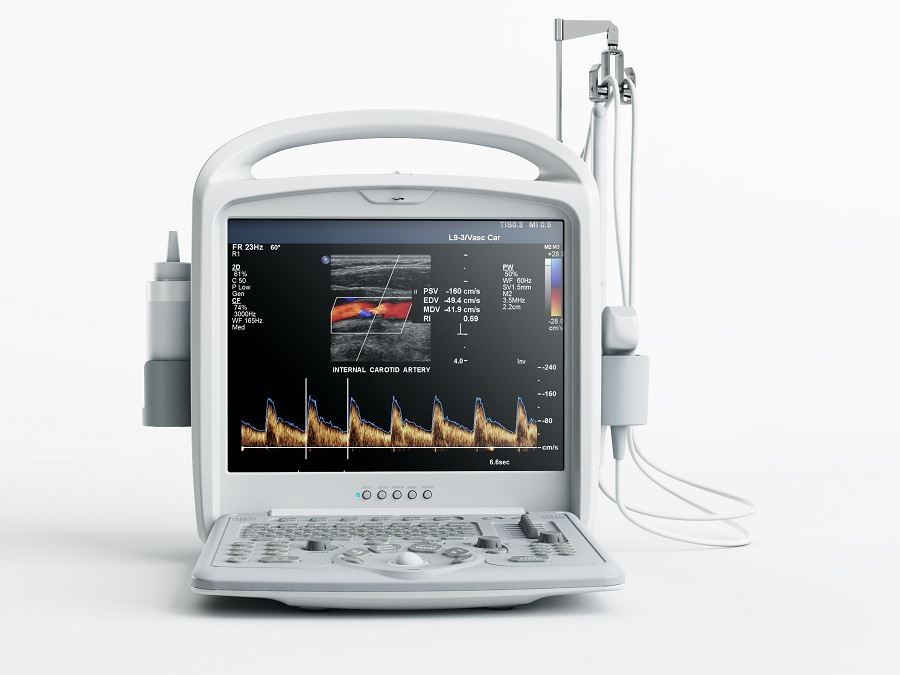 Resonable Price Medical Equipment Color Doppler Ultrasound System pictures & photos