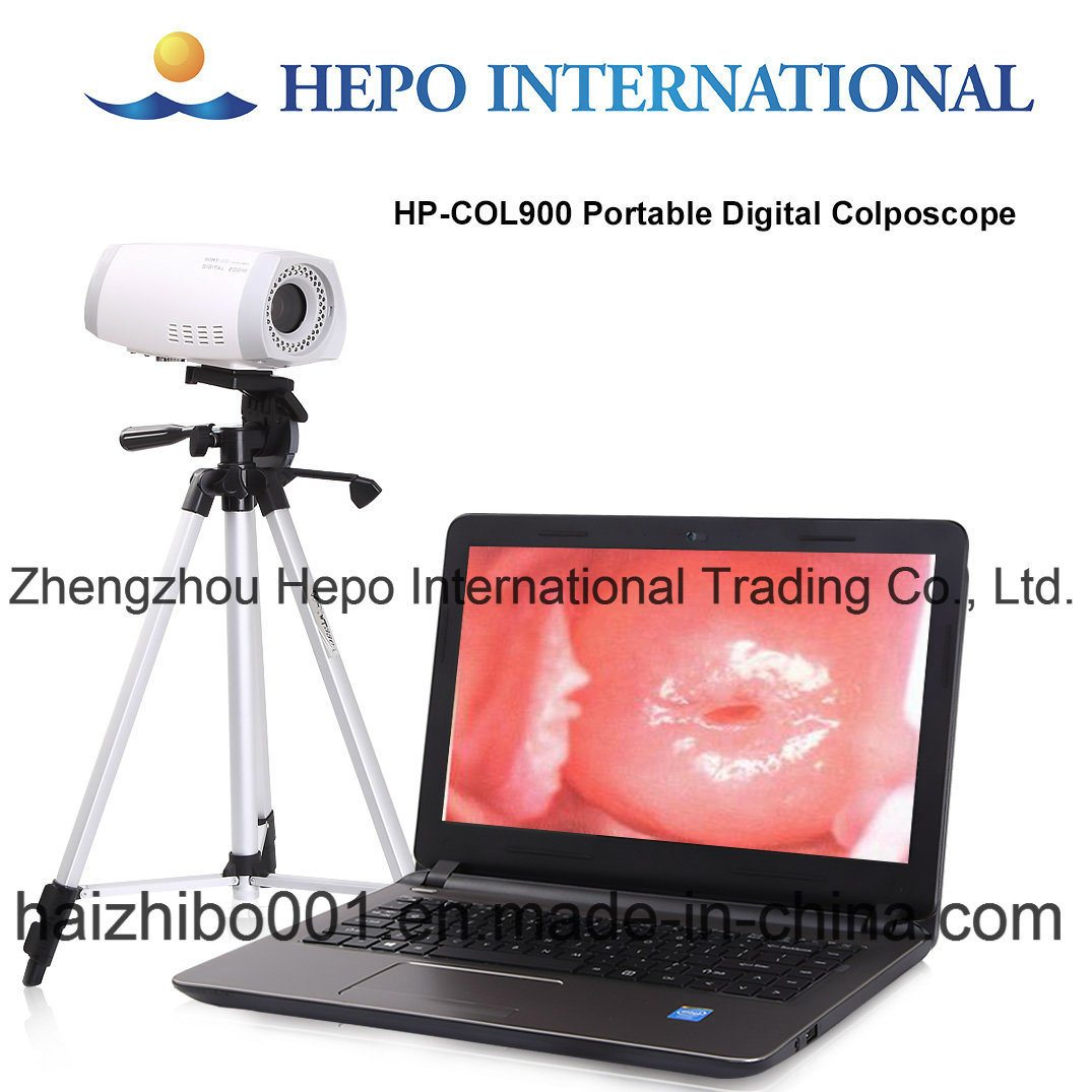 Ce Mark Gynecological Portable Digital Colposcope (HP-COL900) pictures & photos
