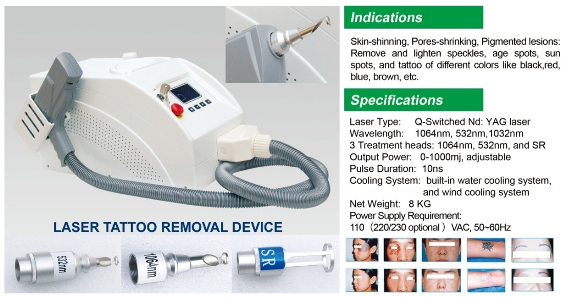 Laser Type Q Switched ND YAG Laser Tattoo Removal Machine Price Permanent Make-up Removal, Carbon Laser Hot Sale pictures & photos