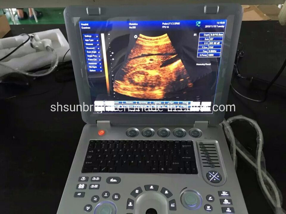 China Best Feedback Free 3D 4D Ultrasound Scanner Baby Ultrasound