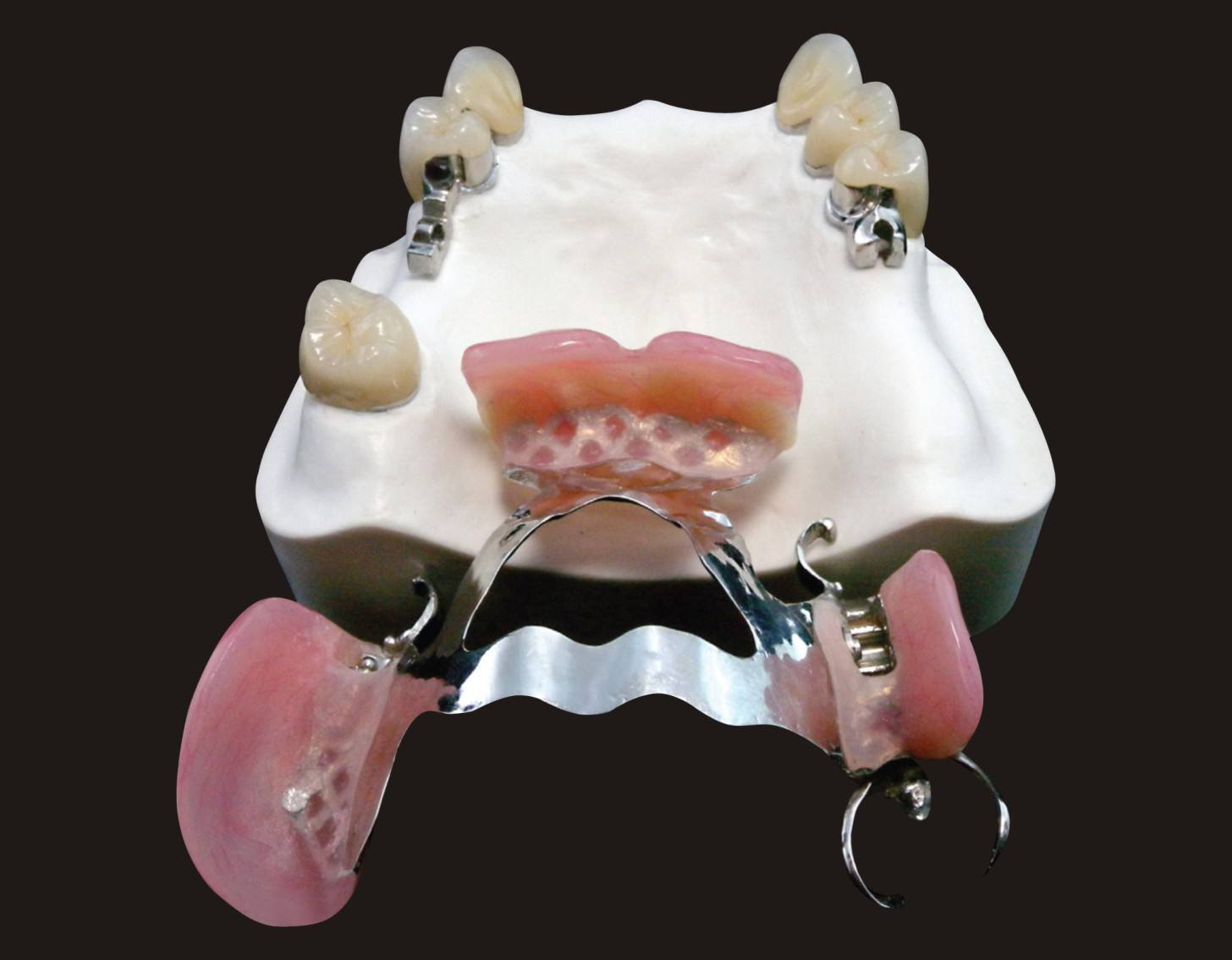 Cast Framework with Precious Mk1 Attachment From Shenzhen Minghao Dental Lab pictures & photos