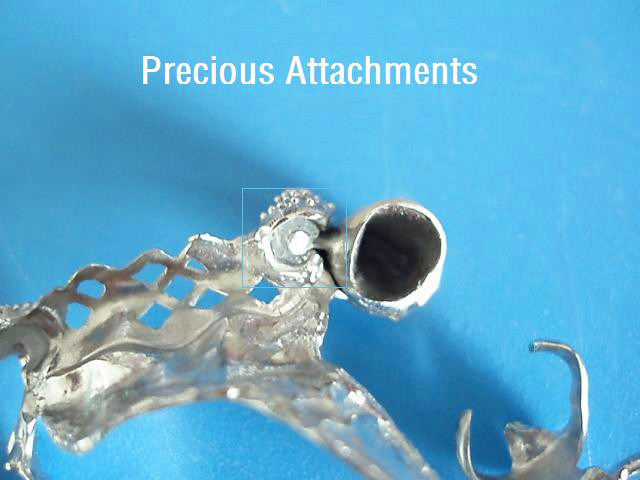 Titanium Alloy Framework with Precious Attachment Made in China Dental Lab