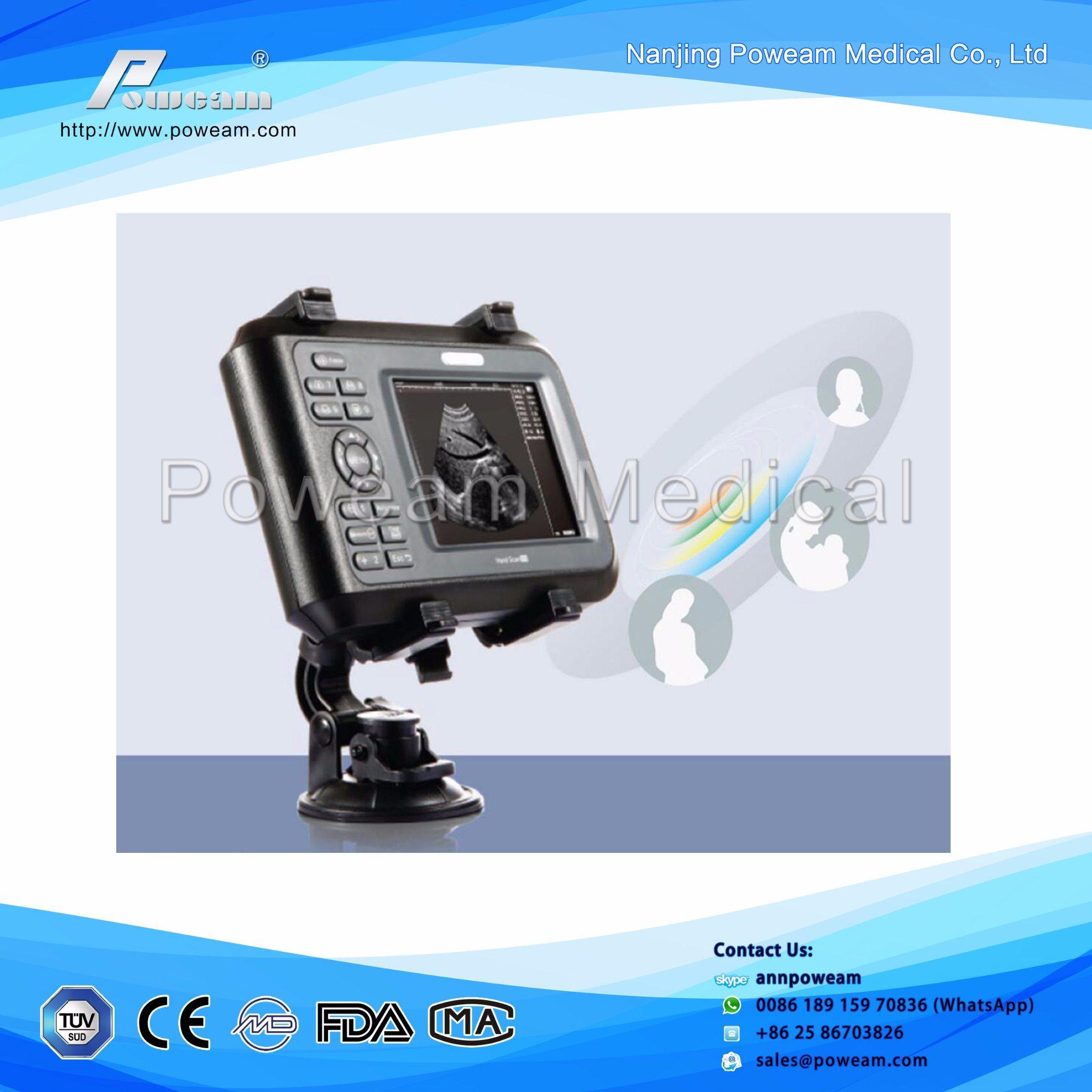 Daftar Harga Printer Usg Termurah 2018 Fujixerox Dpm225dw China Portable Usb For Laptop Palm Ultrasound Probe Scanner Handheld