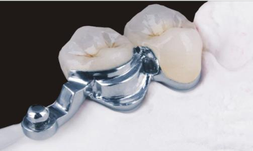 Cast Partial Denture with Ball Precision Attachment pictures & photos