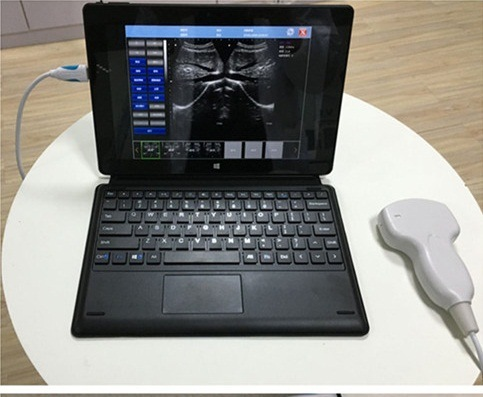 Wireless USB Probe Ultrasound Scanner Connected Laptop PC iPhone iPad pictures & photos