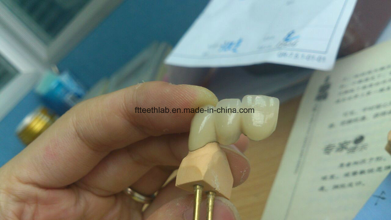 Dental Metal Ceramic Crown