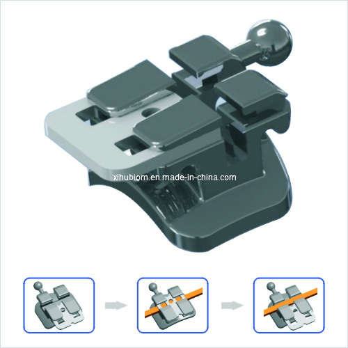 Dental Product Orthodontic Self Ligating Mbt Bracket of Passive System Standard 0.022 pictures & photos