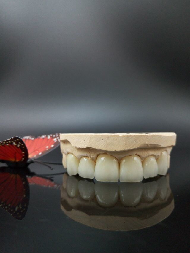 Dental Veneers of IPS. E-Max Custom-Made Beautiful Smile pictures & photos