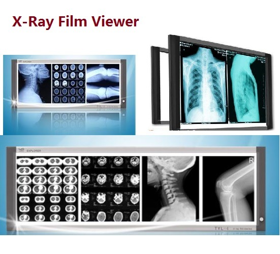 X-ray Film Viewer Film, Viewbox, Observation Lamp, Film Illuminator (TYL Series)
