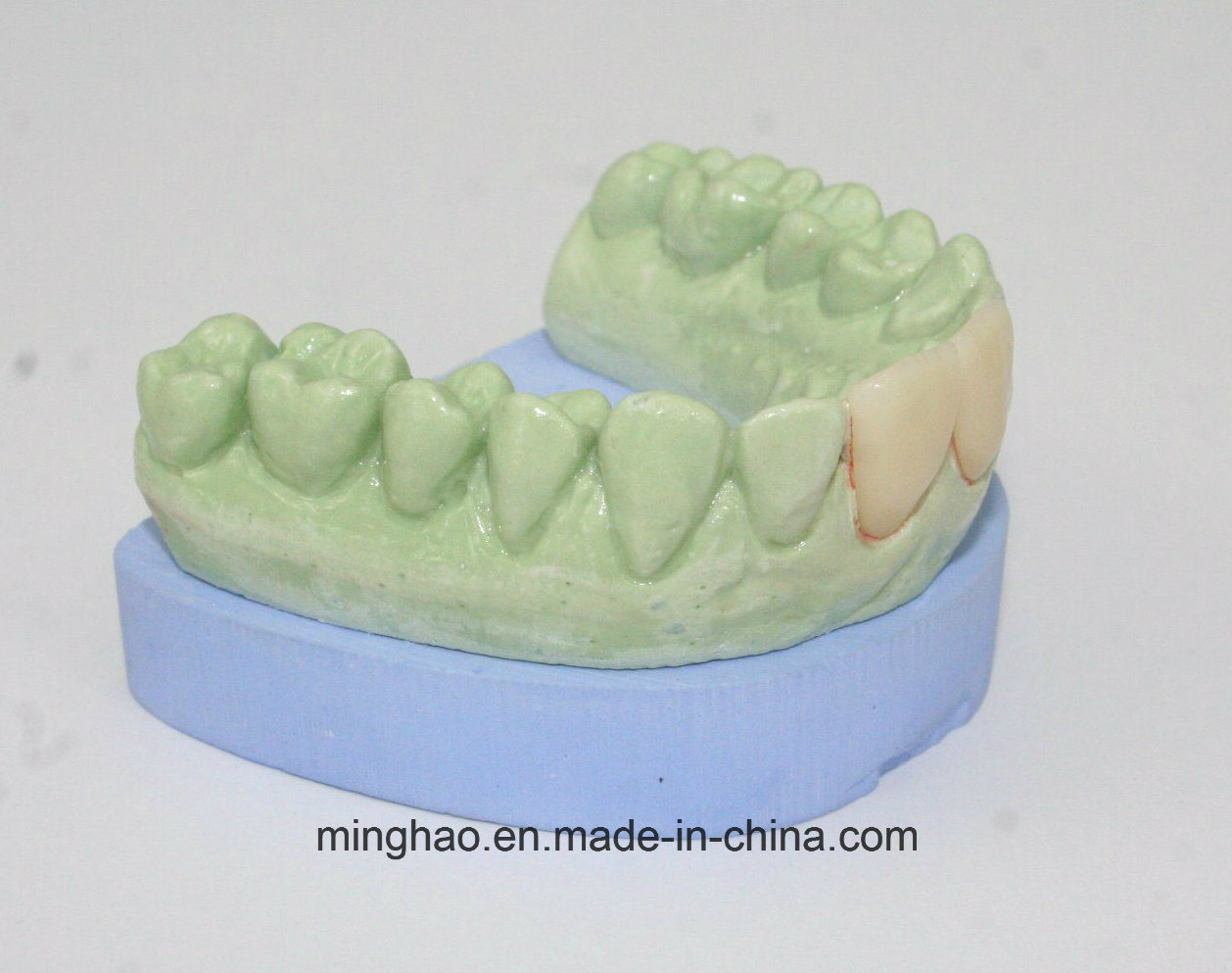 All Ceramic Crown IPS E-Max Veneer CAD/Cam Manufactured pictures & photos