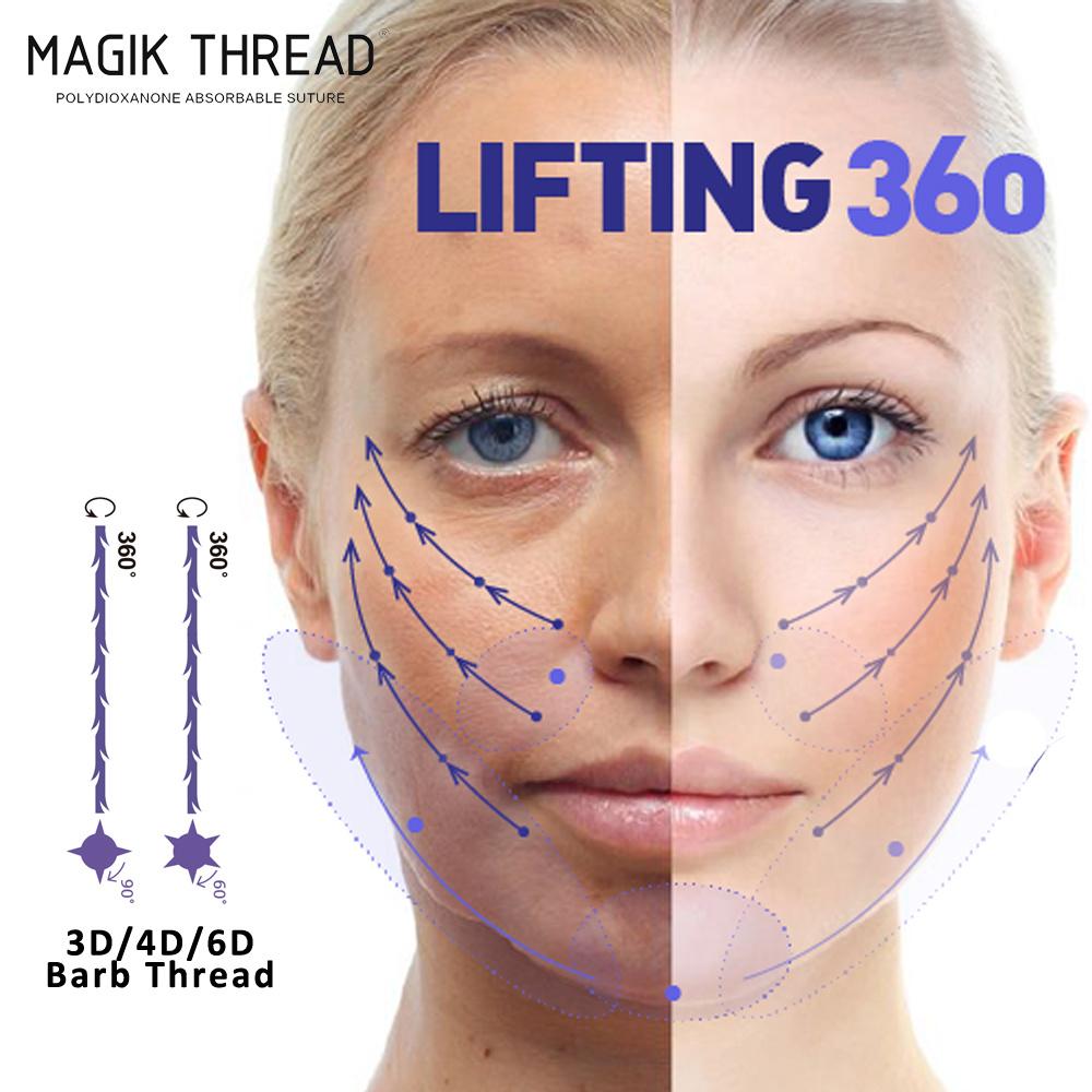 [Hot Item] Face Lifting Magik Thread Mono/Screw/Twin Pdo Thread