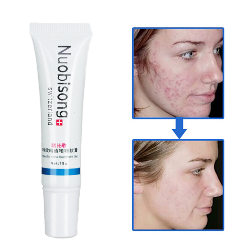 [Hot Item] Nuobisong Face Skin Care Treatment The Face Pimples Scar Stretch  Marks Removal Acne Treatment Moisturizing Cream