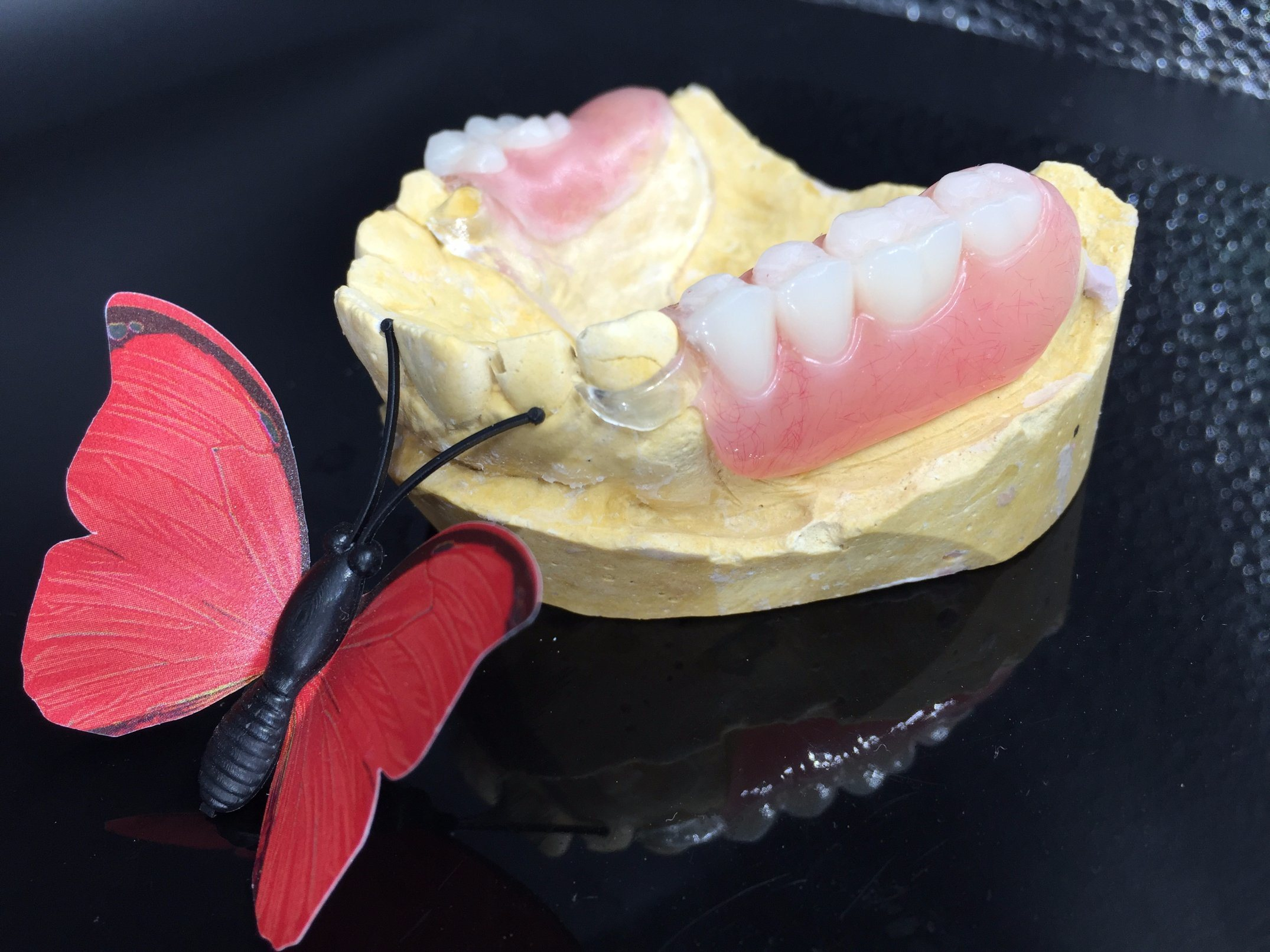 Clear Framework and Acrylic Denture Set up & Finish pictures & photos
