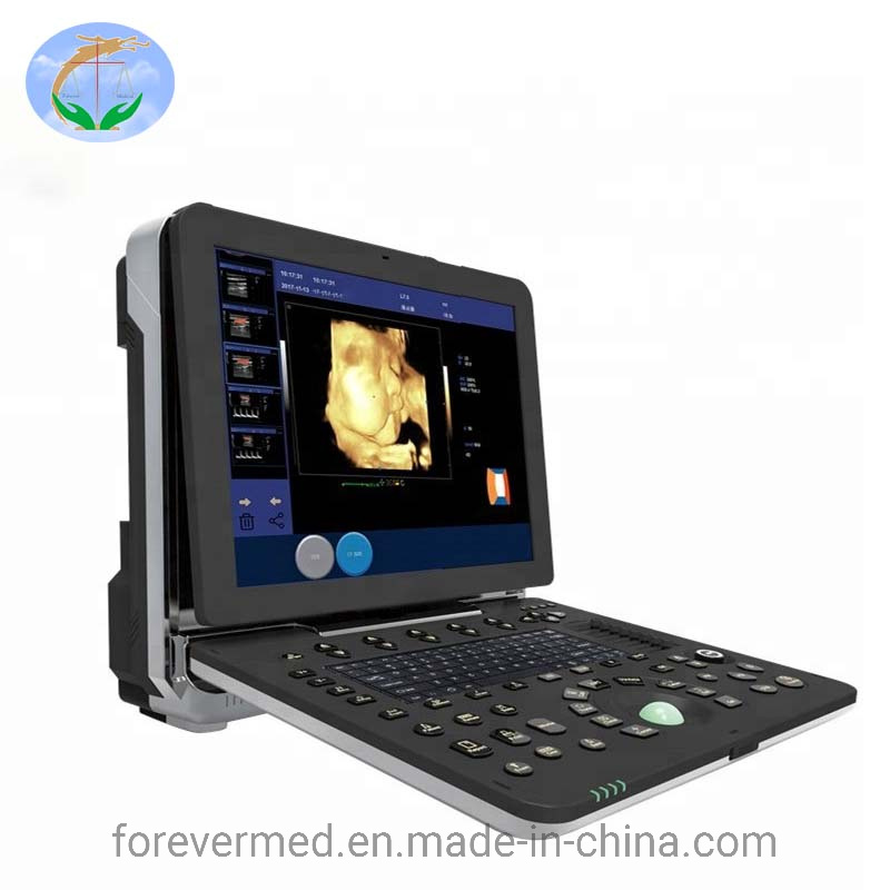 New Type Medical 3D/4D Color Doppler Portable Ultrasound Scanner pictures & photos