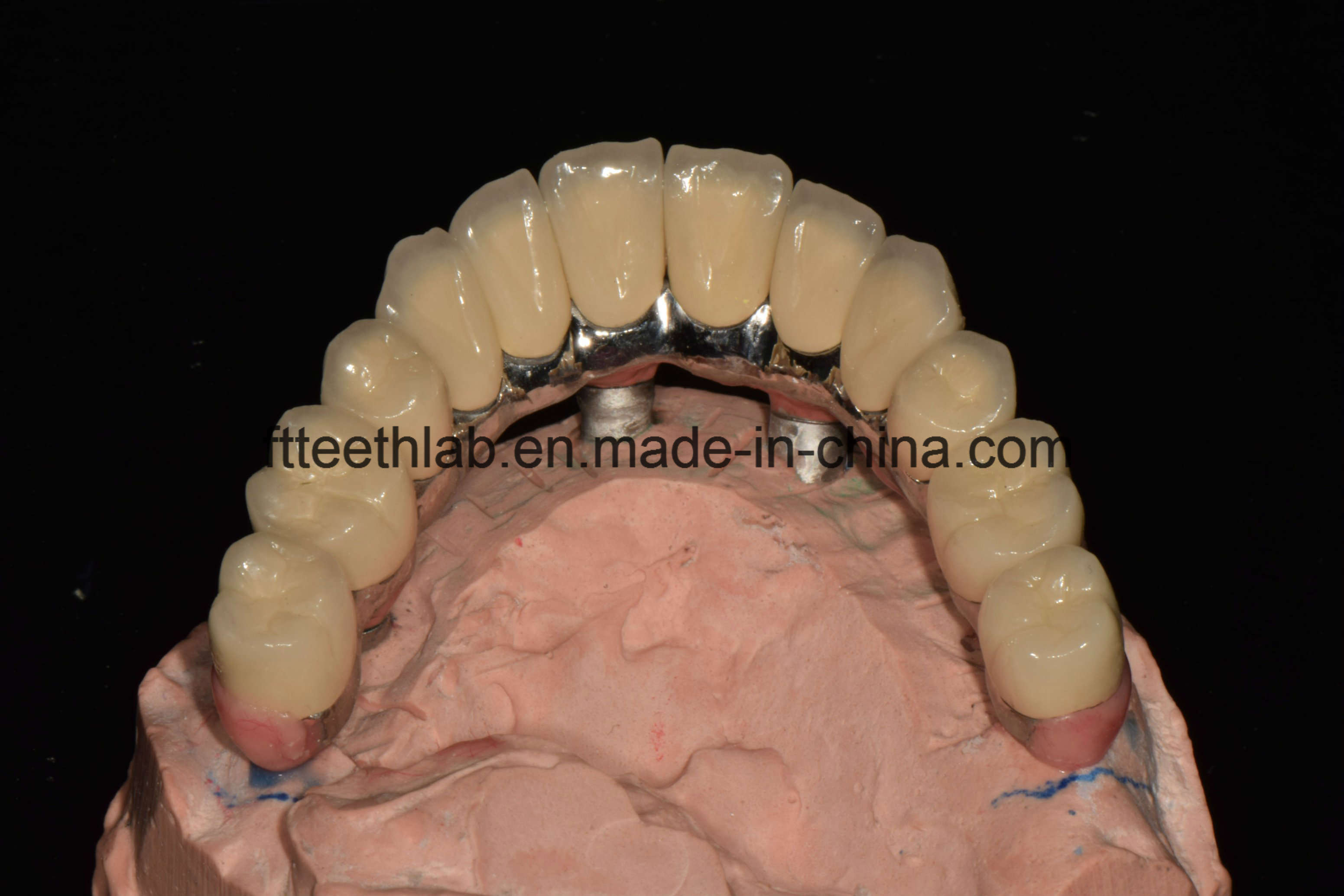 Full Arch Cemented Metal Ceramic Implant Bridge