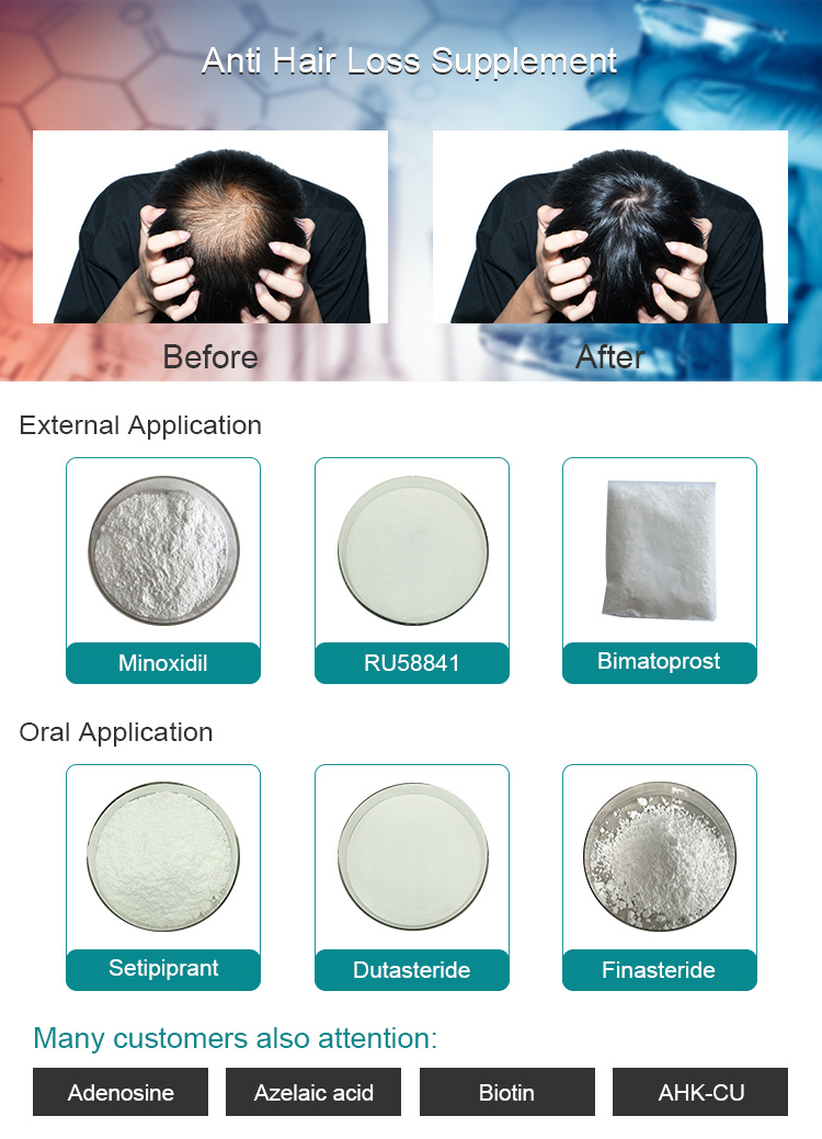 China Oral Drugs Treat Male Pattern Hair Loss Dutasteride Pure Powder Cas 164656 23 9 Photos Pictures Made In China Com