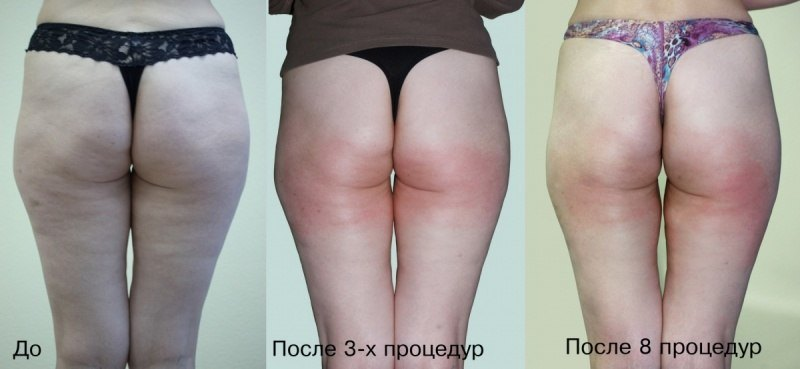 China Popular Beauty Device Kuma Shape For Cellulite Weight Loss Photos Pictures Made In China Com