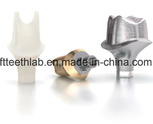 Dental Custom Abutments Compatible with Nobel, Straumnn, Dentium, Mis, Astra Tech, Zimmer, Dio, Osstem