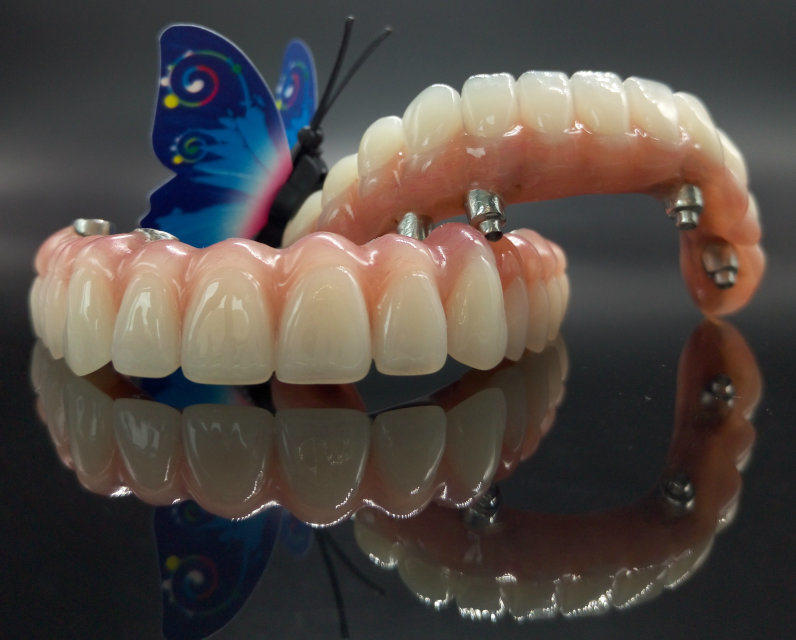 Implant Hybrid Denture Made in Minghao Dental Lab pictures & photos