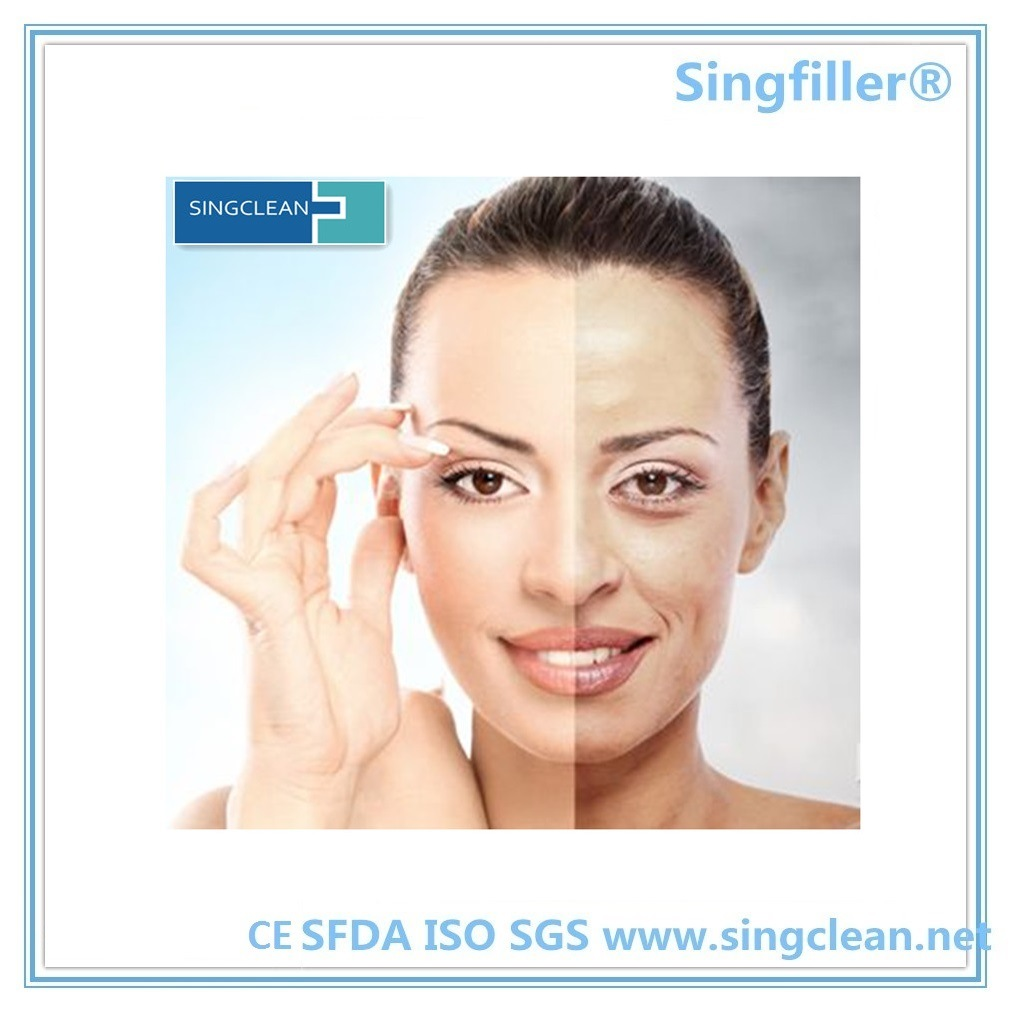 Ce Singfiller Manufacturer Supply Hyaluronic Acid Dermal Filler pictures & photos