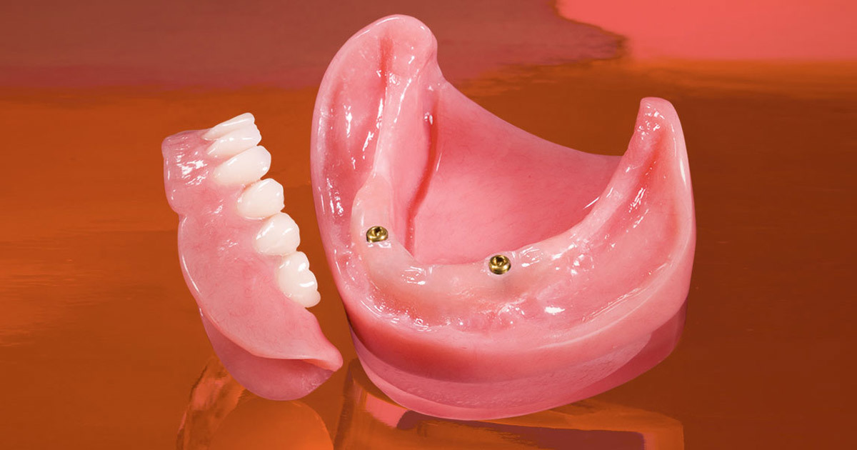 Implant Overdentue From Outsourcing Dental Lab in China pictures & photos