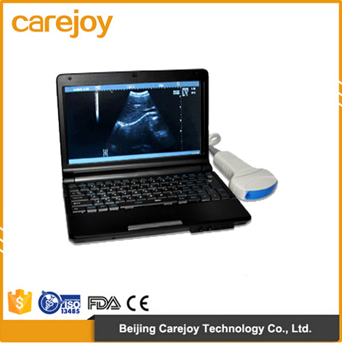 Factory Price 10 Inch Laptop Ultrasound Scanner with Linear Probe (RUS-9000F) -Fanny