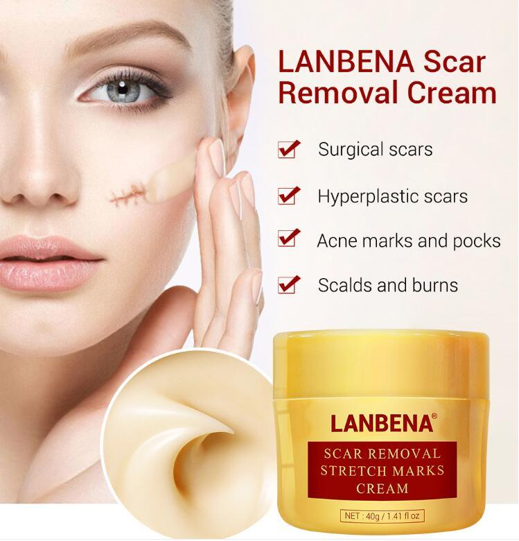 China Lanbena Stretch Mark Acne Scar Removal Cream Pockmark Repair