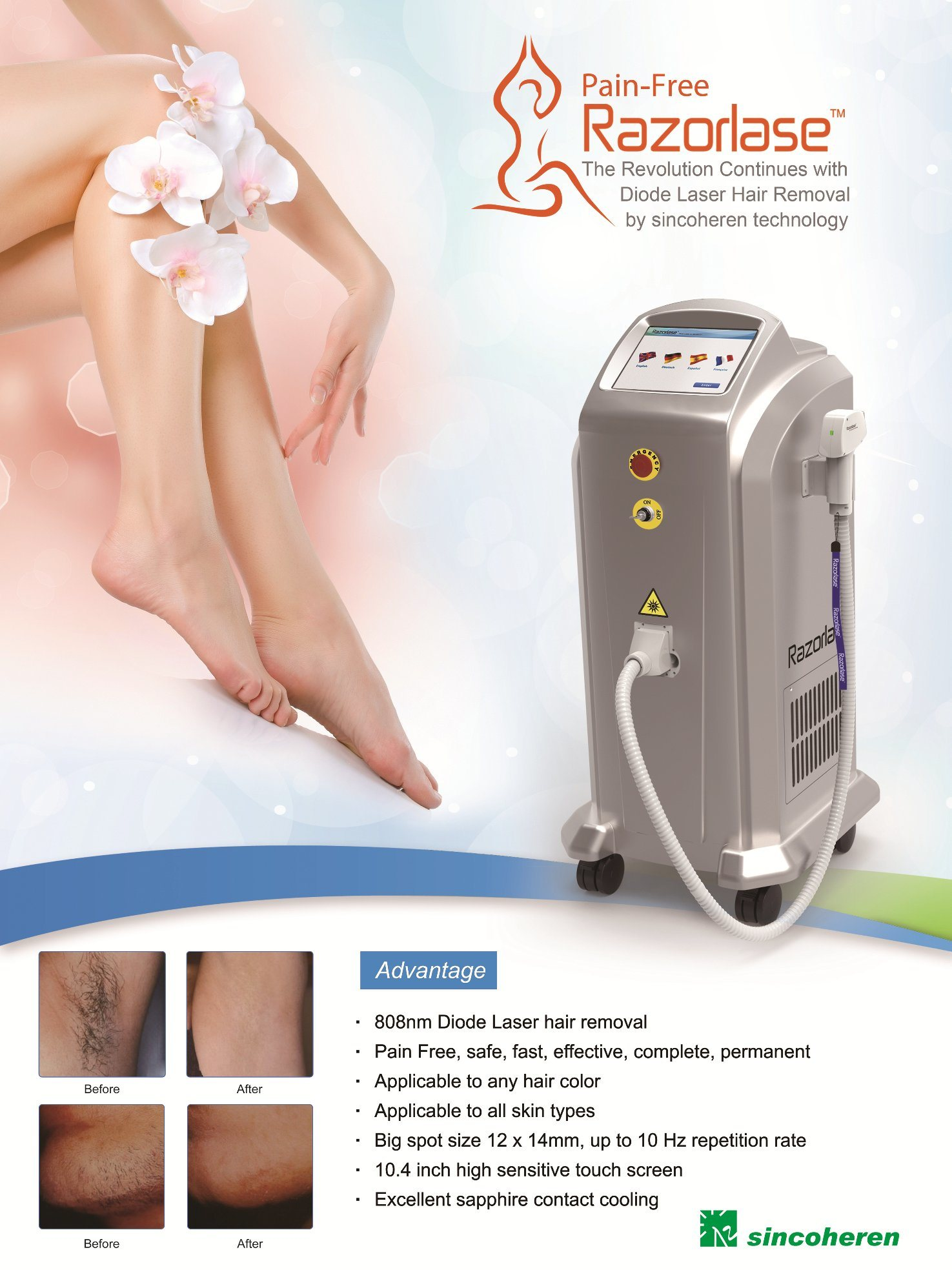 China Alma Laser Soprano Ipl Diode Laser Hair Removal Machine Price