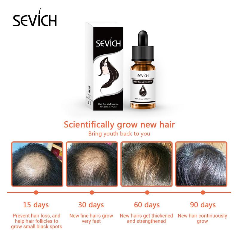 Beauty & Health Beautiful Hottest Beard Oil Essence Hair Growth Essential Oil Products 100% Natural Herbs Anti Hair Loss Treatment Hair Beard Growth Oil Hair Loss Products