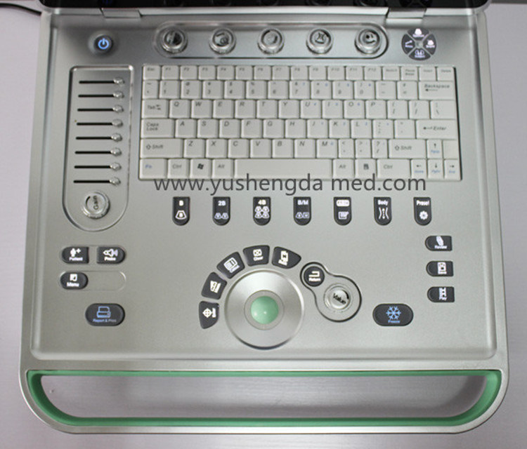 Ce Gynaecology Obstetrics Medical Equipment System Diagnostic Ultrasound pictures & photos