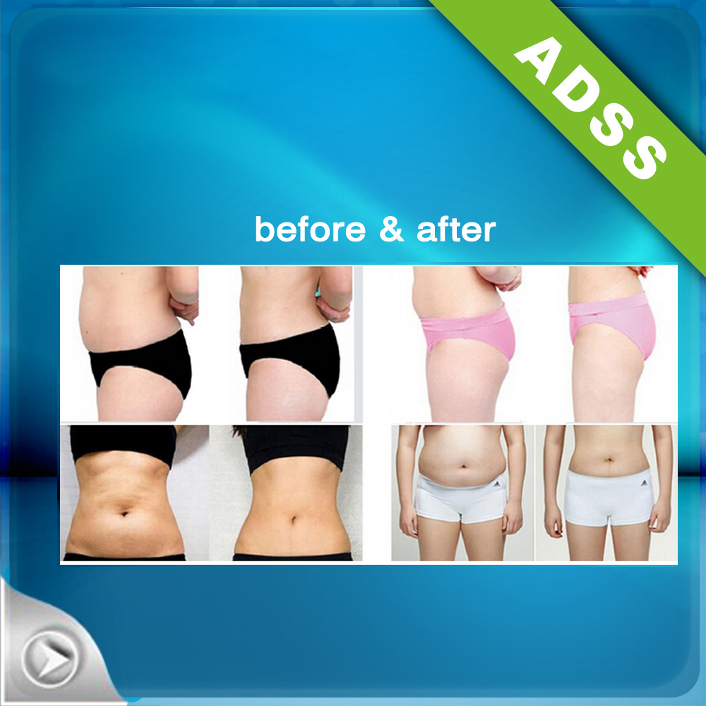 ADSS Hifu Body Slimming Machine pictures & photos