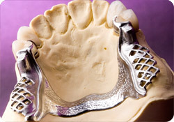 Ccp Framework with Acrylic Denture Made in China Dental Lab