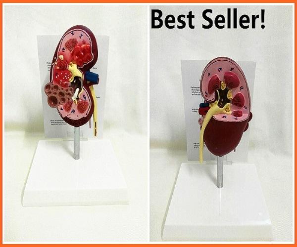 Foto de Best Seller de riñón humano normal y anatomía enferma modelo ...