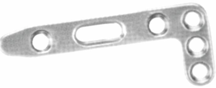 As placas de travamento do raio Posterior distal-III