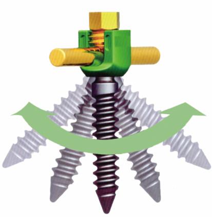 J-Sagacious 5,5 Schrauben- und Stabsystem