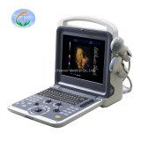 Medical Equipment 3D Color Doppler Ultrasound Scanner