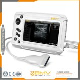Ce Approval Portable Ultrasound Scanner Human Medical Health Care Product