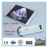 Wholesale Price WiFi Portable Ultrasound Equipment