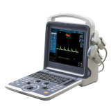 Mcl-K0 Most Cost-Effective Portable Color Doppler Ultrasound Scanner/Ultrasound Machine