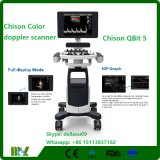 Portable Color Doppler Ultrasound Scanner with Good Qualuity Chison Qbit 5