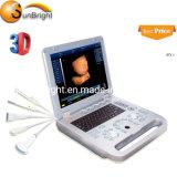 Cheap Full Digital 3D Medical Obstetrics Ultrasound Equipment