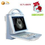 Digital Ultrasound Scanner Price