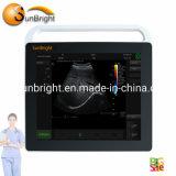 Full Digital 15 Inch Ultrasound Touch Screen Vascular Ultrasound Price