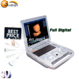 3D/4D Portable Msk Ultrasound Price Medical Laptop USG Device Is Cheap Sun-800d