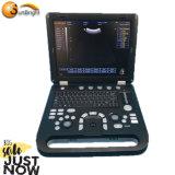 Best Seller 3D Laptop Ultrasound Machine System Under Big Promotion Price