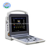 High Performance Hospital Medica Trolley Diagnostic 4D Color Doppler Ultrasound Scanner