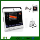 Diagnostic Scanner Touch Screen Portable Color Doppler Ultrasound System Machine