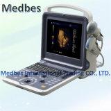 New 3D/4D Sonoscape Trolley Diagnostic Ultrasound Scanner
